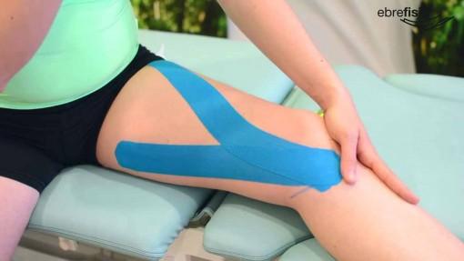 Vendaje neuromuscular valgo de rodillas