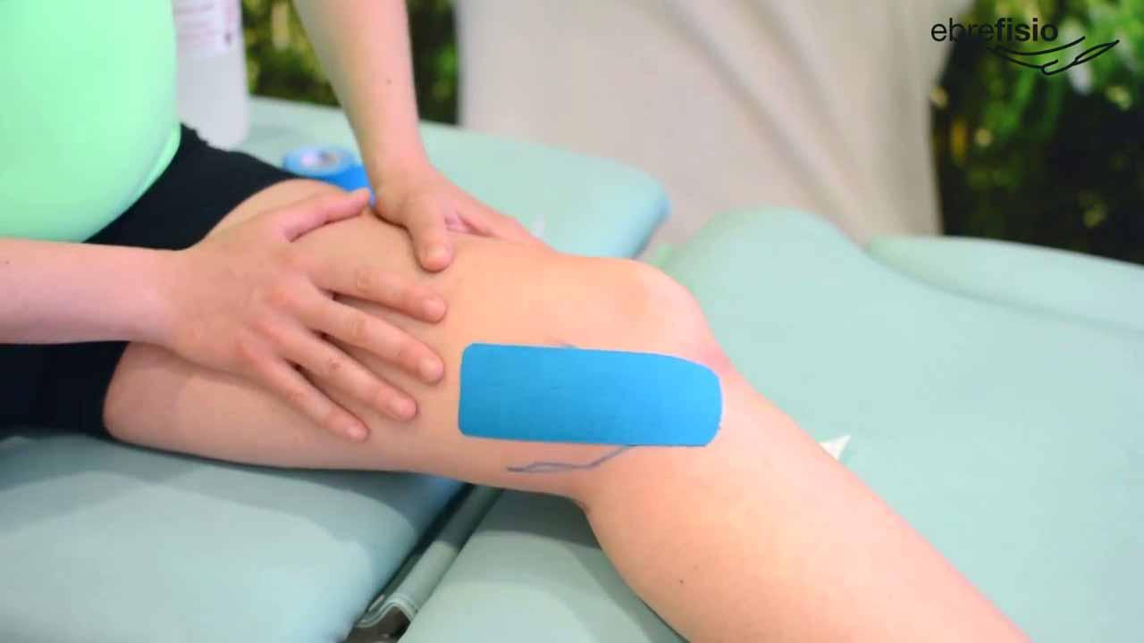 Vendaje neuromuscular para la tendinitis de pata de ganso
